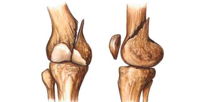 Alimentos para la curación de huesos fracturados