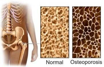 evitar osteoporosis