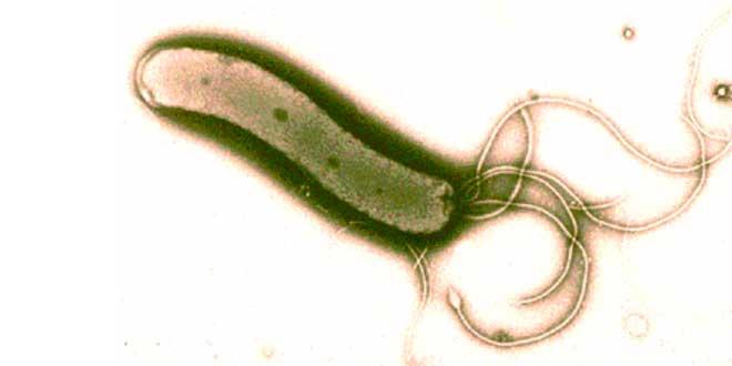 Helicobacter pylori vista en el microscopio