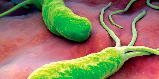 Japonský doktor zjistil, jak definitivně zabít bakterii Helicobacter pylori