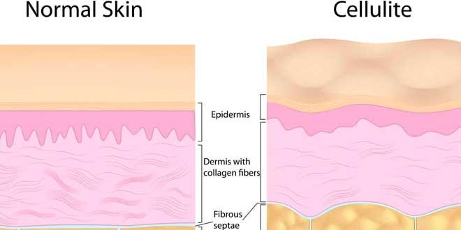 Piel Normal VS Piel Celulitis