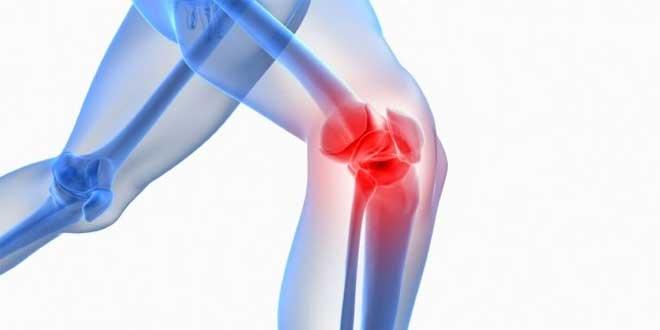 SAMe y osteoartritis