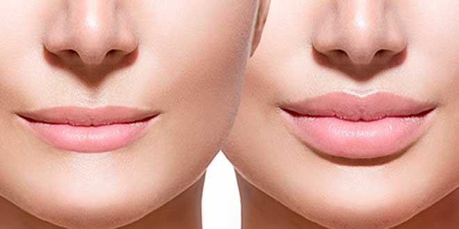 hyaluronic-acid-lips